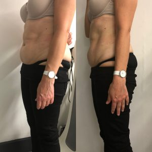 Body contouring at Dietconsulting